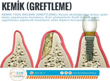 greftleme