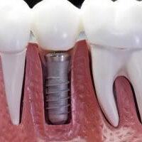 implant44-300x233-1-300x210